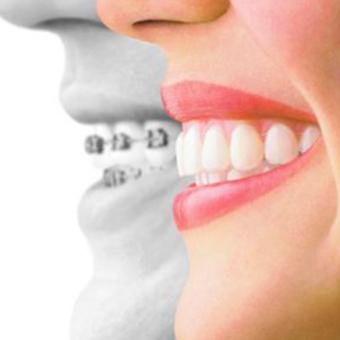 歯科矯正治療について