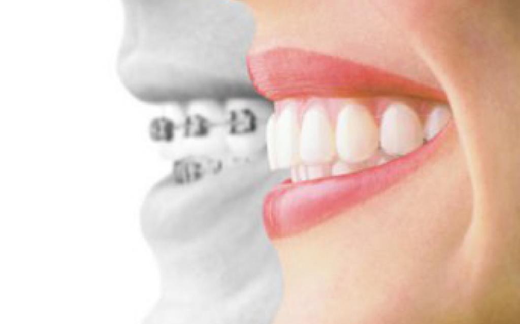 通常の歯科矯正