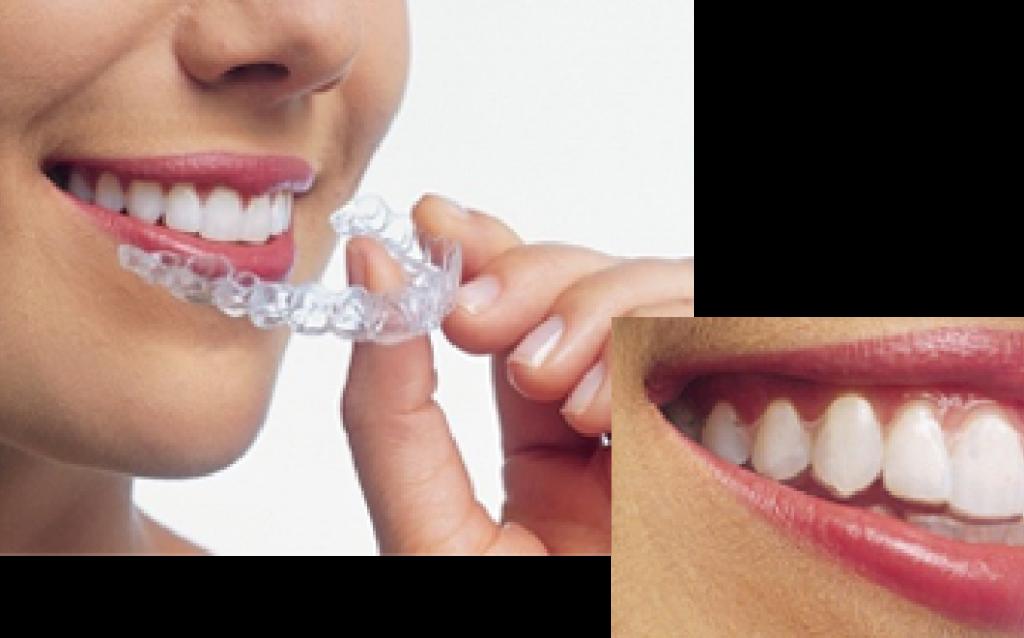 インビザライン(マウスピース型カスタムメイド矯正歯科治療)